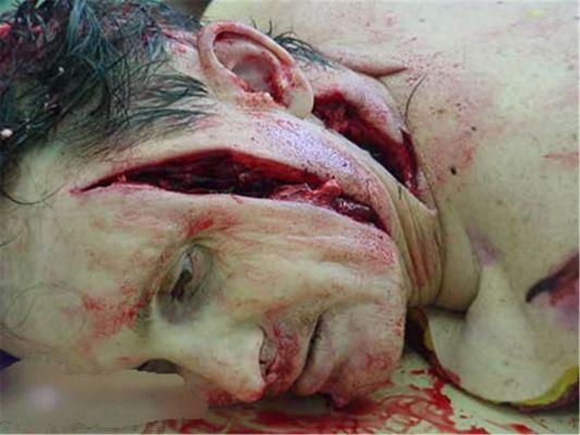 un homme tuè et mutilè avec un couteau Normal_7c1841c348...67a5f732-145e23b
